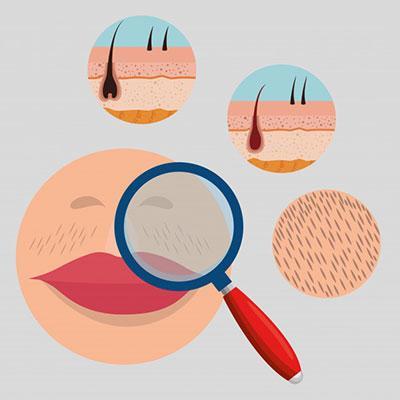 بهترین روش از بین بردن و حذف موهای زائد