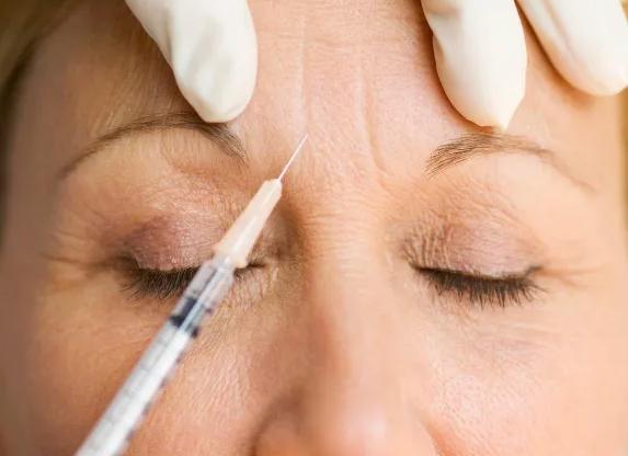چه سنی برای تزریق بوتاکس مناسب است؟
