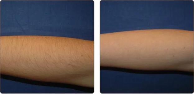 آیا لیزر باعث ایجاد زخم روی پوستمان میشود