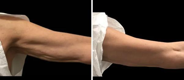مزوتراپی چگونه باعث لاغری میشود؟