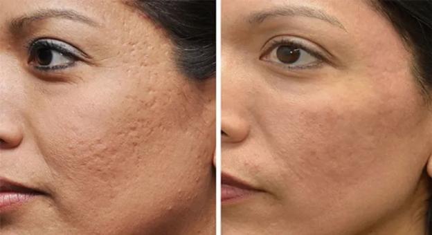 مزوتراپی چه تاثیری روی پوست دارد